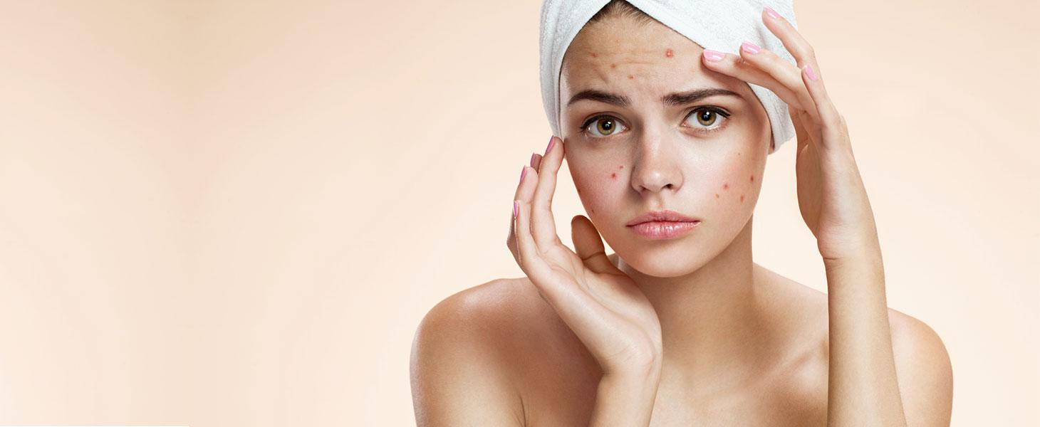 traitement contre les boutons d'acné centre de bien être Illis à Pessac