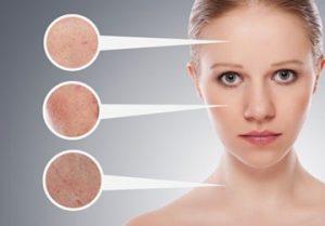 traitement contre l'acne_centre-de-bien-être-Illis-pessac