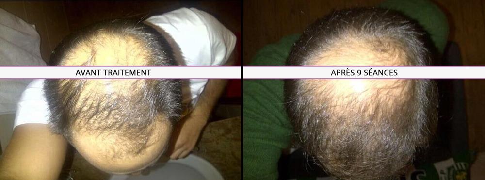 resultat-traitement-contre-calvitie