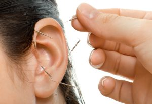 acupuncture-oreille-tabac