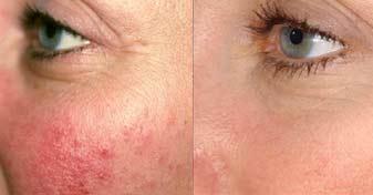 laser-vasculaire-visage-illis